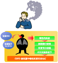 有害ガス 有害粒子Ex.タバコ⇒慢性的炎症⇒肺胞壁の破壊 気管支の収縮 ガス交換率低下⇒COPD:肺気腫や慢性気管支炎など