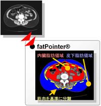 fatPointer 内臓脂肪領域 皮下脂肪領域 筋肉を基準に分裂